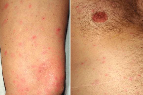 dermatologische aandoeningen